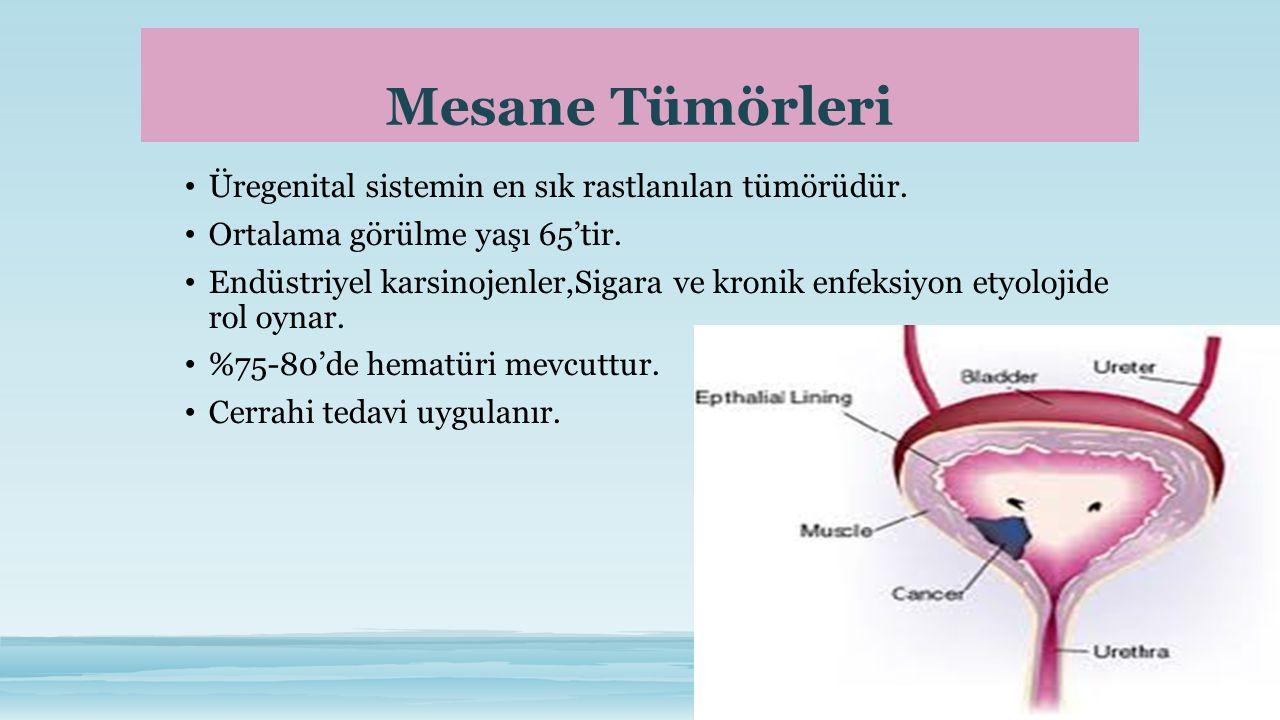Mesane Tümörleri Üregenital sistemin en sık rastlanılan tümörüdür.