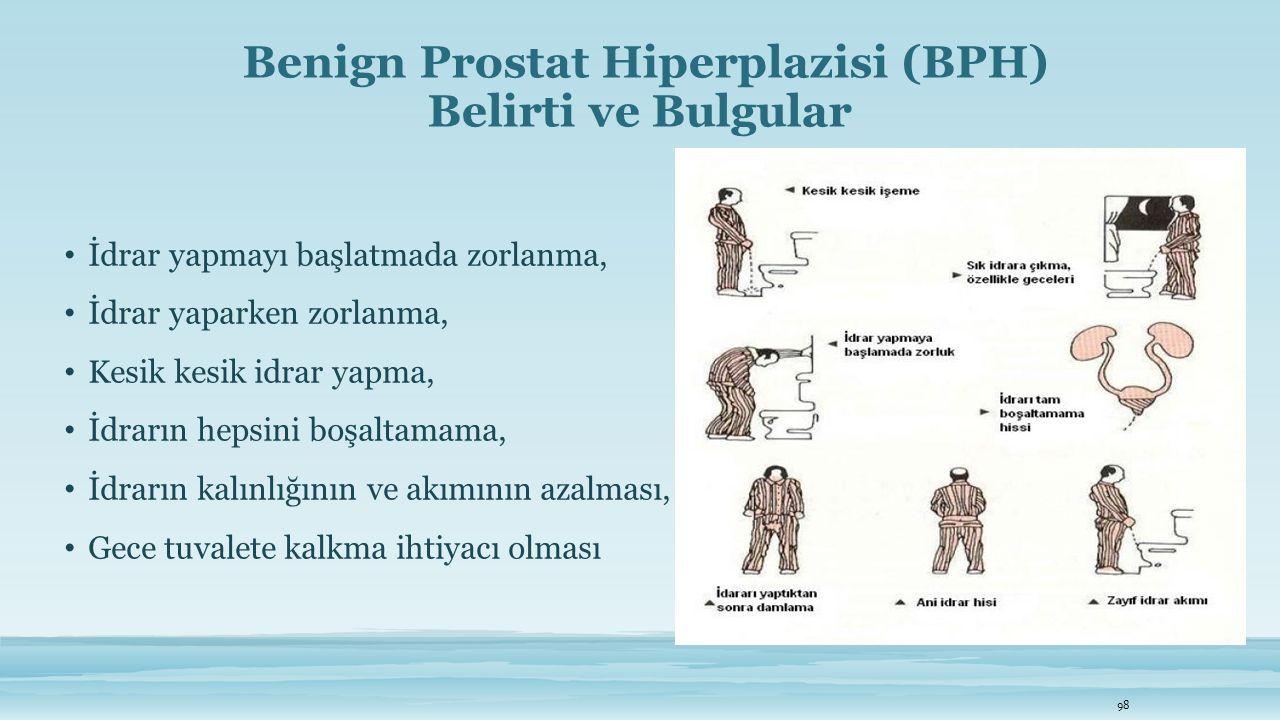Benign Prostat Hiperplazisi (BPH) Belirti ve Bulgular