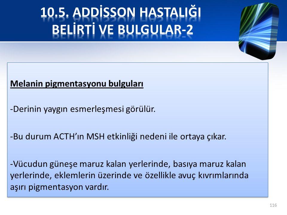 10.5. ADDİSSON HASTALIĞI BELİRTİ VE BULGULAR-2