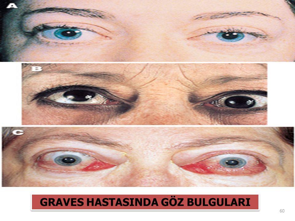 GRAVES HASTASINDA GÖZ BULGULARI