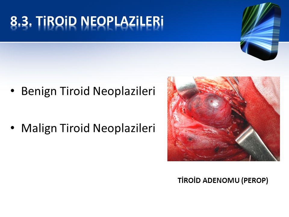 8.3. TiROiD NEOPLAZiLERi Benign Tiroid Neoplazileri