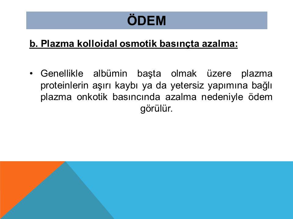 ÖDEM b. Plazma kolloidal osmotik basınçta azalma: