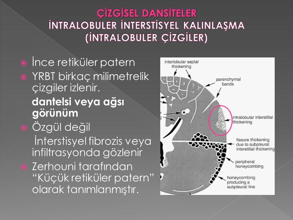 YRBT birkaç milimetrelik çizgiler izlenir. dantelsi veya ağsı görünüm