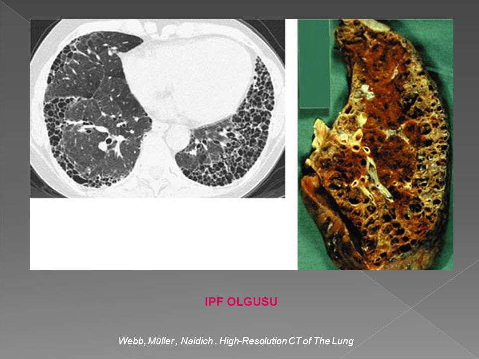 Webb, Müller , Naidich . High-Resolution CT of The Lung