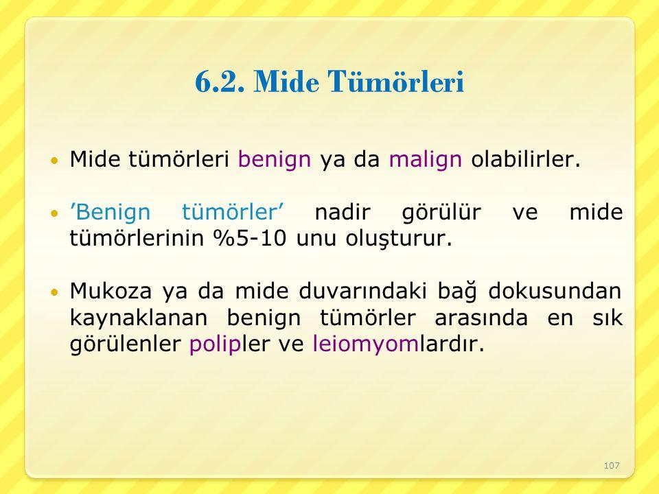 6.2. Mide Tümörleri Mide tümörleri benign ya da malign olabilirler.