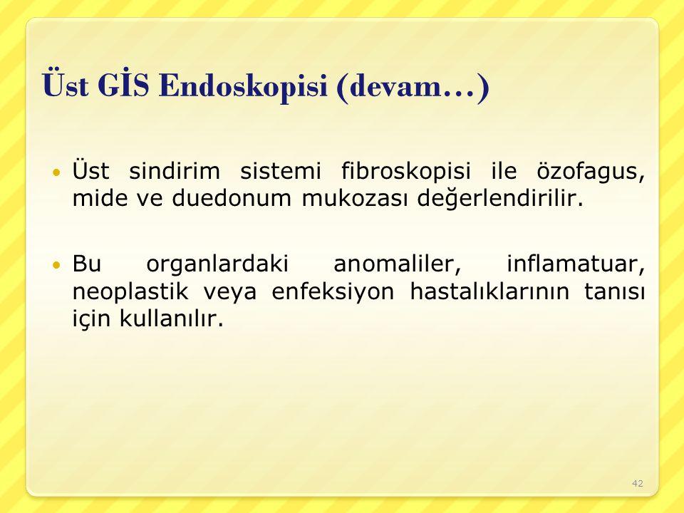 Üst GİS Endoskopisi (devam…)