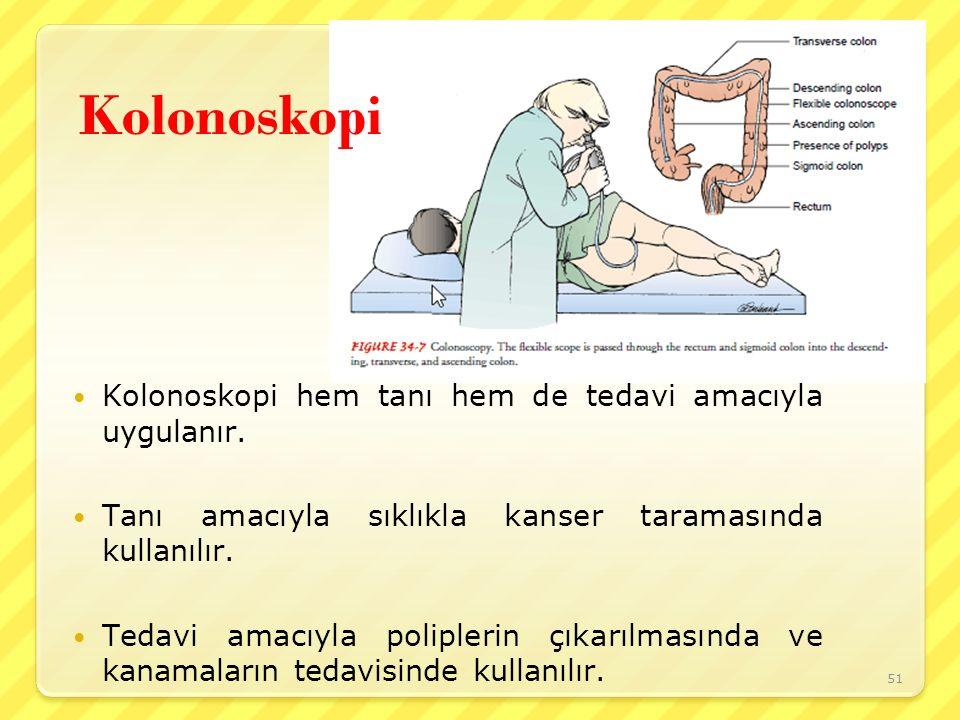 Kolonoskopi Kolonoskopi hem tanı hem de tedavi amacıyla uygulanır.