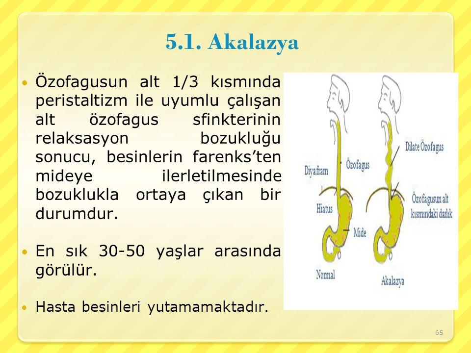 5.1. Akalazya