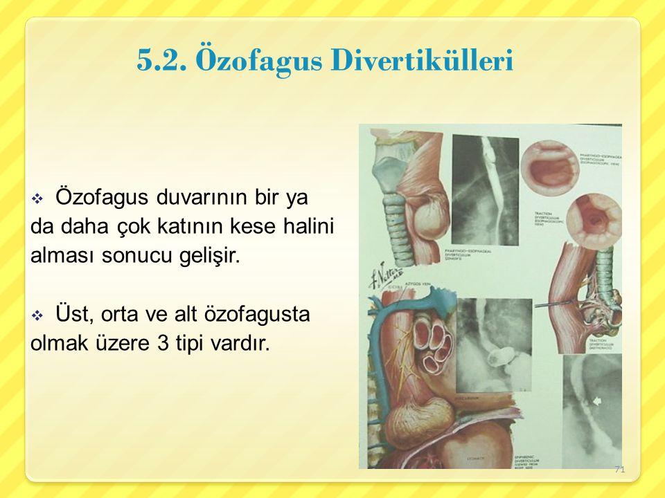 5.2. Özofagus Divertikülleri