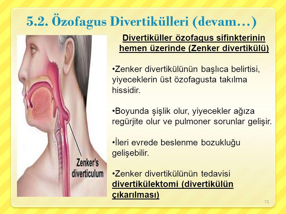 5.2. Özofagus Divertikülleri (devam…)
