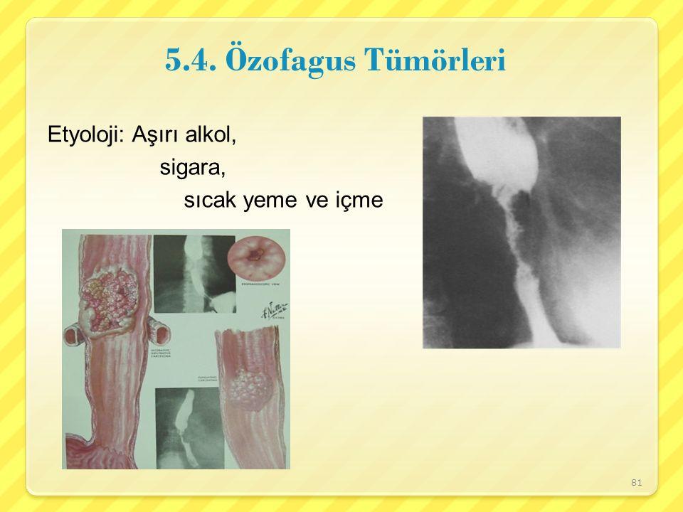 5.4. Özofagus Tümörleri Etyoloji: Aşırı alkol, sigara,