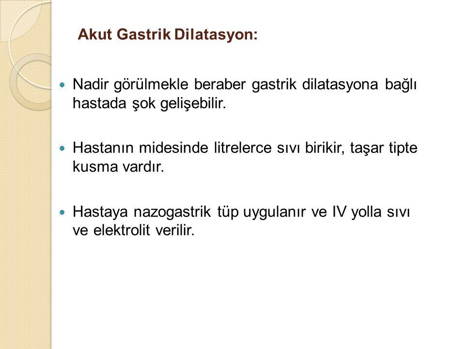 Akut Gastrik Dilatasyon: