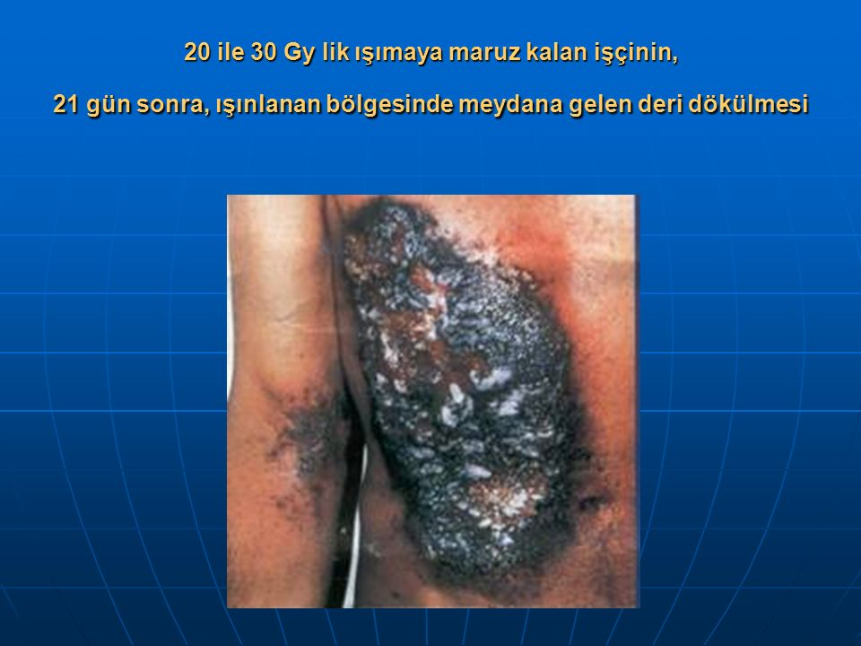 20 ile 30 Gy lik ışımaya maruz kalan işçinin, 21 gün sonra, ışınlanan bölgesinde meydana gelen deri dökülmesi