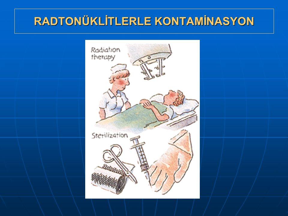 RADTONÜKLİTLERLE KONTAMİNASYON