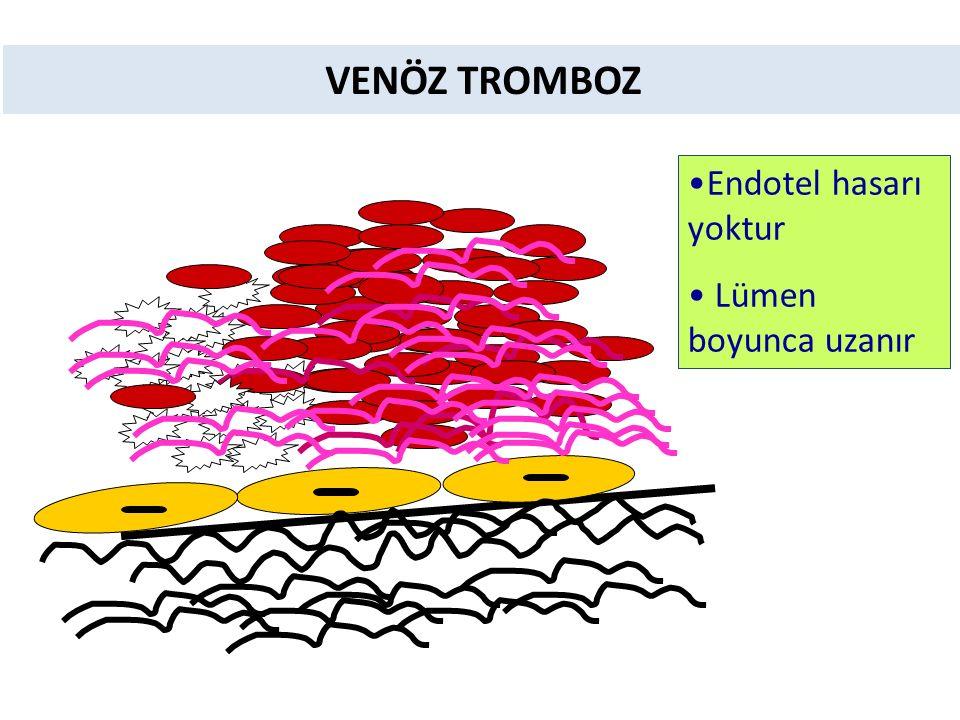 VENÖZ TROMBOZ Endotel hasarı yoktur Lümen boyunca uzanır