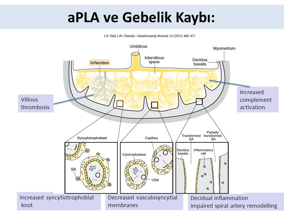 aPLA ve Gebelik Kaybı: Increased complement activation