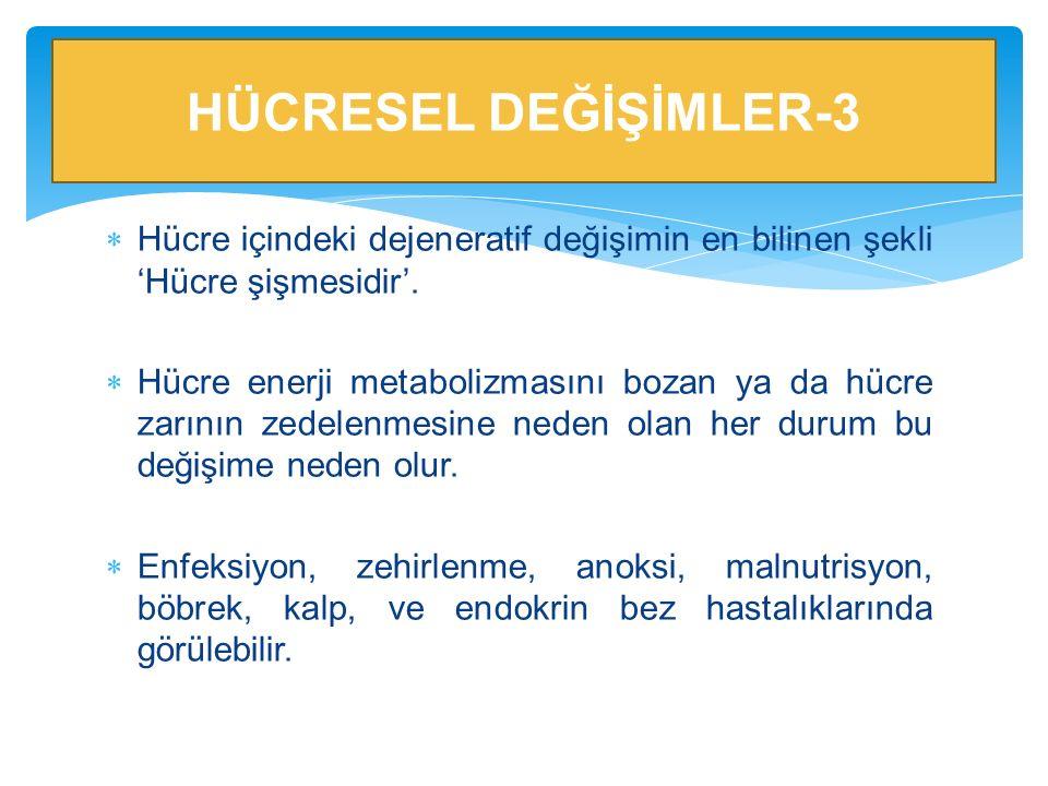 HÜCRESEL DEĞİŞİMLER-3 Hücre içindeki dejeneratif değişimin en bilinen şekli 'Hücre şişmesidir'.