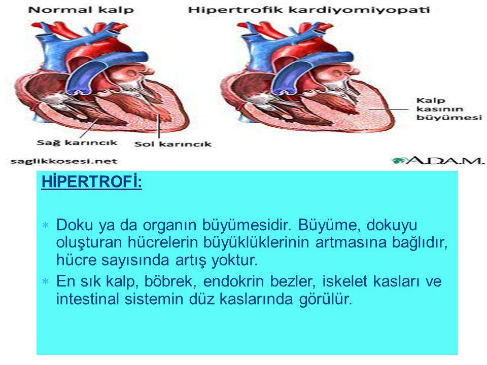 HİPERTROFİ: Doku ya da organın büyümesidir. Büyüme, dokuyu oluşturan hücrelerin büyüklüklerinin artmasına bağlıdır, hücre sayısında artış yoktur.