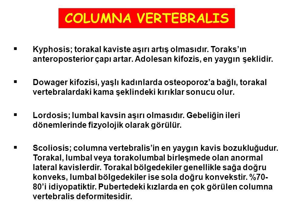 COLUMNA VERTEBRALIS Kyphosis; torakal kaviste aşırı artış olmasıdır. Toraks'ın anteroposterior çapı artar. Adolesan kifozis, en yaygın şeklidir.
