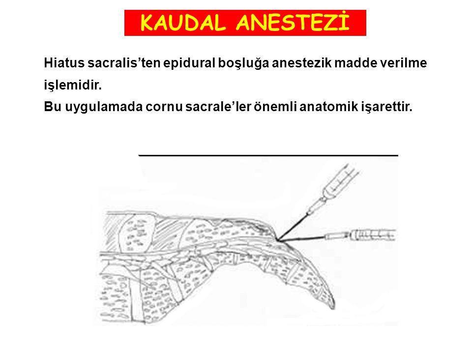 KAUDAL ANESTEZİ Hiatus sacralis'ten epidural boşluğa anestezik madde verilme.