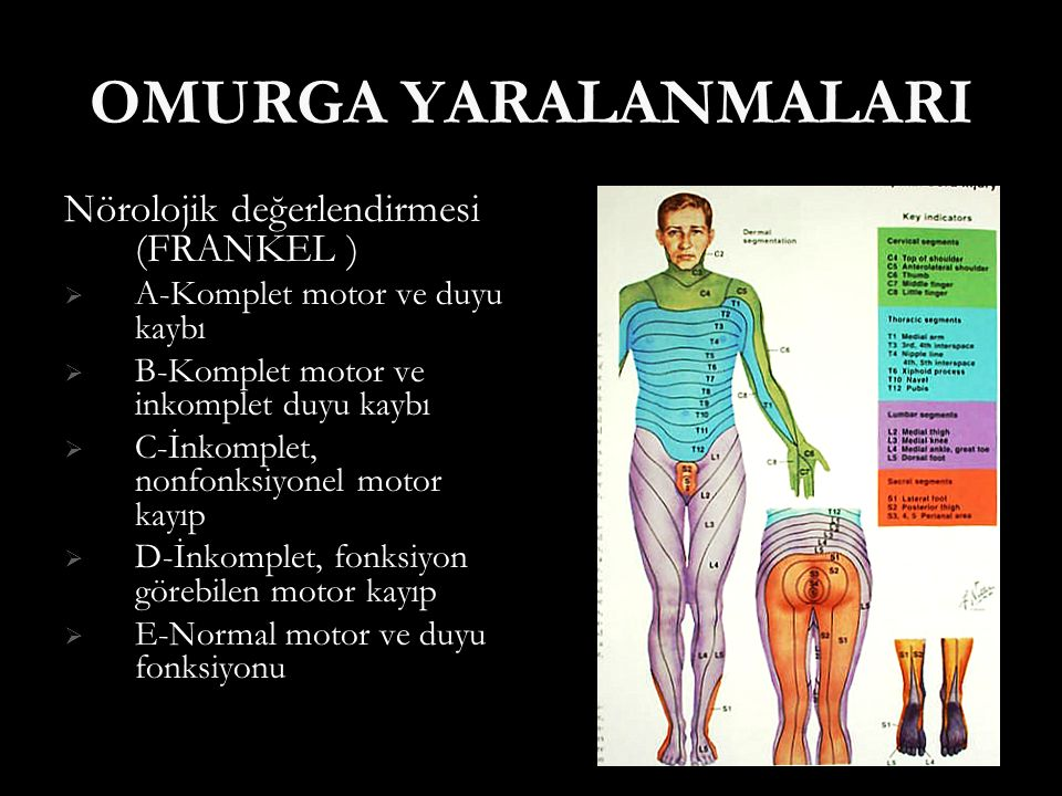 OMURGA YARALANMALARI Nörolojik değerlendirmesi (FRANKEL )