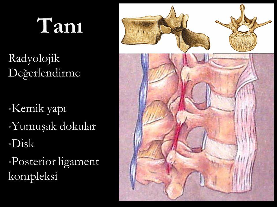 Tanı Radyolojik Değerlendirme Kemik yapı Yumuşak dokular Disk
