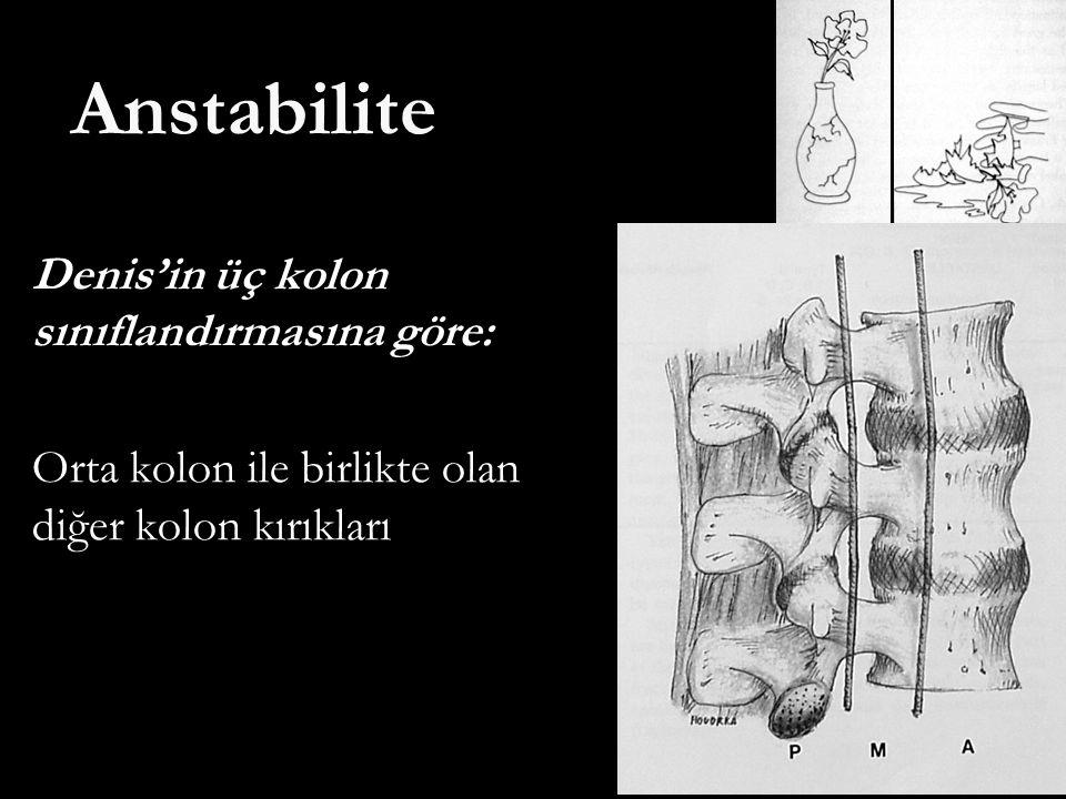 Anstabilite Denis'in üç kolon sınıflandırmasına göre: