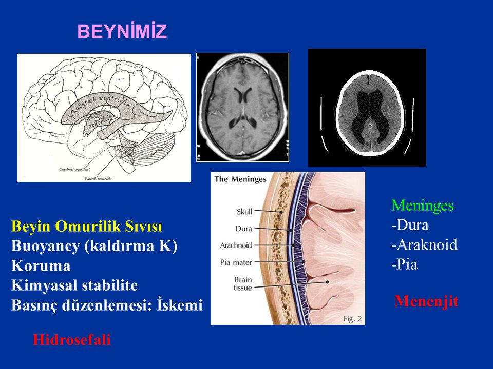BEYNİMİZ Meninges -Dura Beyin Omurilik Sıvısı -Araknoid