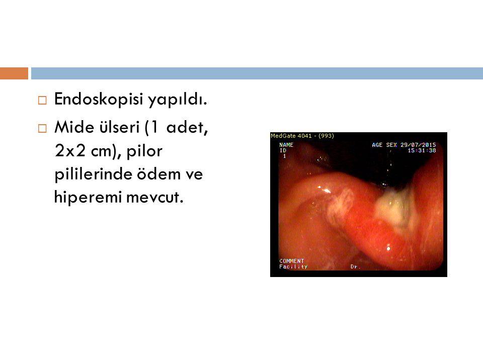 Endoskopisi yapıldı. Mide ülseri (1 adet, 2x2 cm), pilor pililerinde ödem ve hiperemi mevcut.