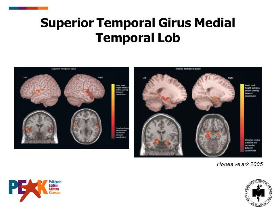 Superior Temporal Girus Medial Temporal Lob