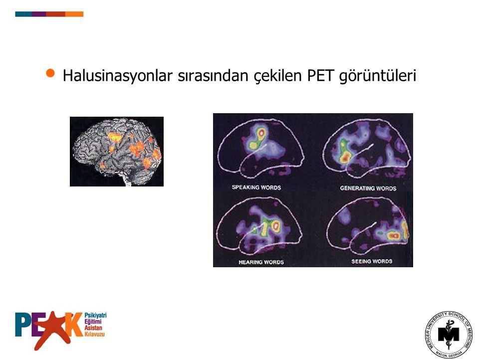 Halusinasyonlar sırasından çekilen PET görüntüleri