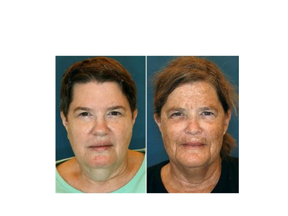 Jeanne (left) and Susan (right), identical twin sisters, serve as a great example of how lifestyle choices can determine a person s skin aging. As children, the two women had an uncanny resemblance, but now it s easy to see that Susan s decision to sunbathe and smoke led her skin to age more rapidly. (Department of Plastic Surgery, University Hospitals Case Medical Center)