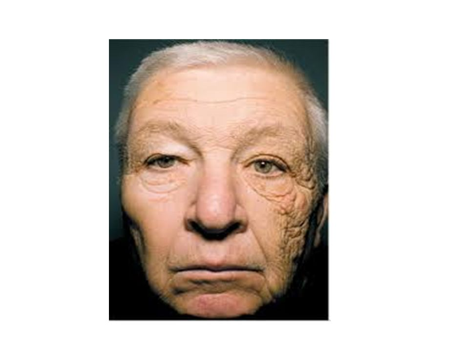 A few weeks ago, a friend of mine showed me an article on MSN about a man whose face was obviously more wrinkled on one side than the other. Mr. McElligott, the gentleman featured in the article, drove a delivery truck for 28 years, exposing the left side of his face to the sun for several hours each day. I have heard several times throughout the years about the importance of sun protection, but hadn't ever dwelled on the topic for much time. Once I read about Mr. McElligott, though, I was quite intrigued and started thinking about the whys and hows of sun damage, UV radiation, and wrinkles.