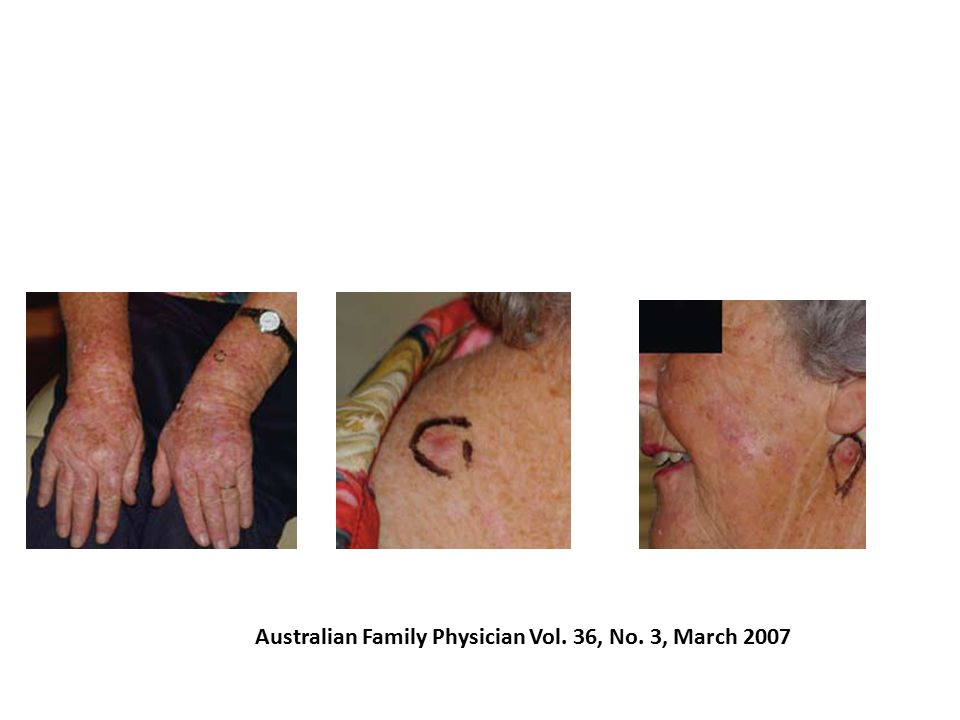 Australian Family Physician Vol. 36, No. 3, March 2007