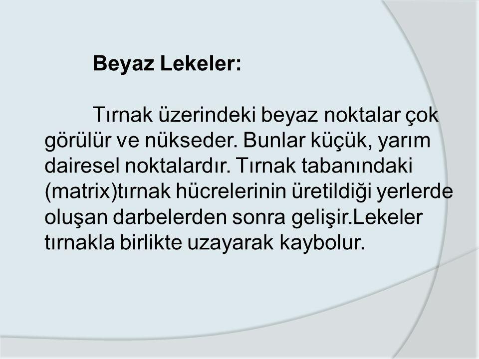 Beyaz Lekeler: