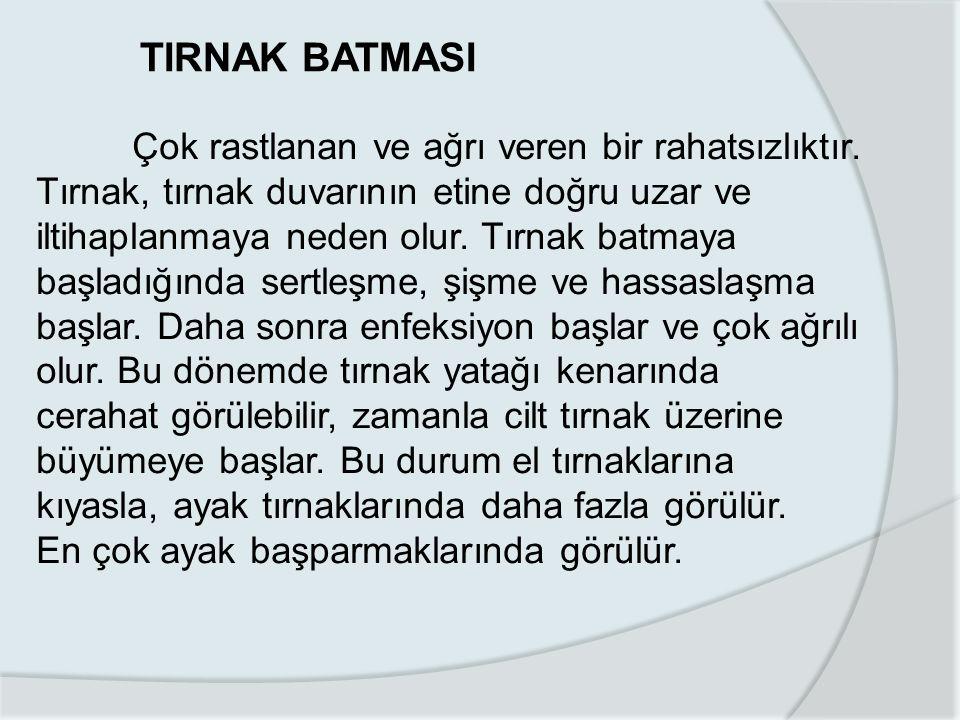TIRNAK BATMASI