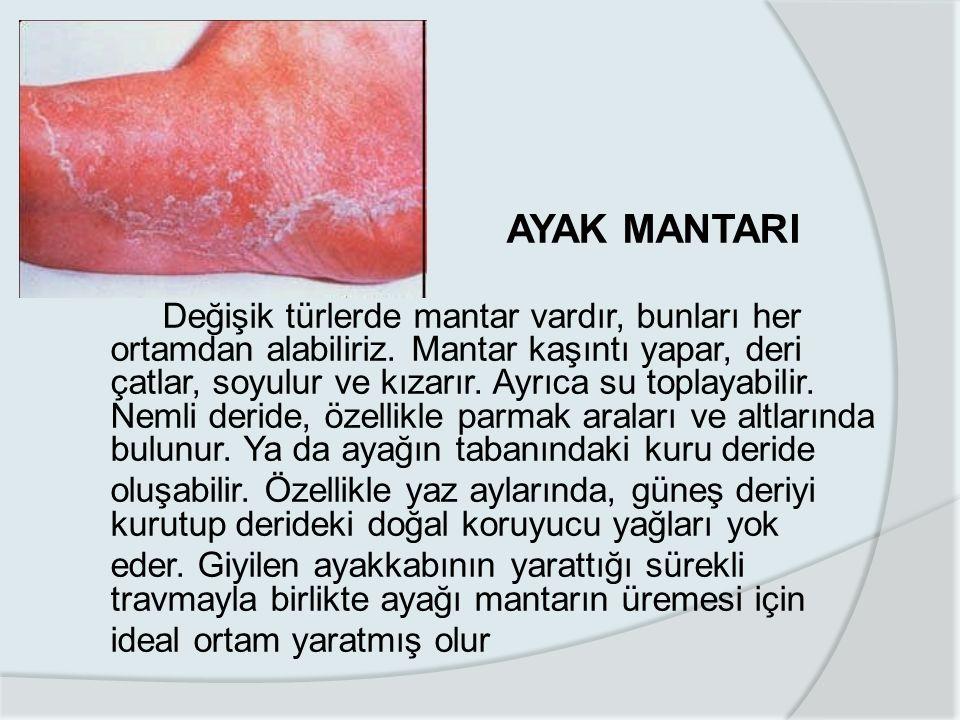 AYAK MANTARI