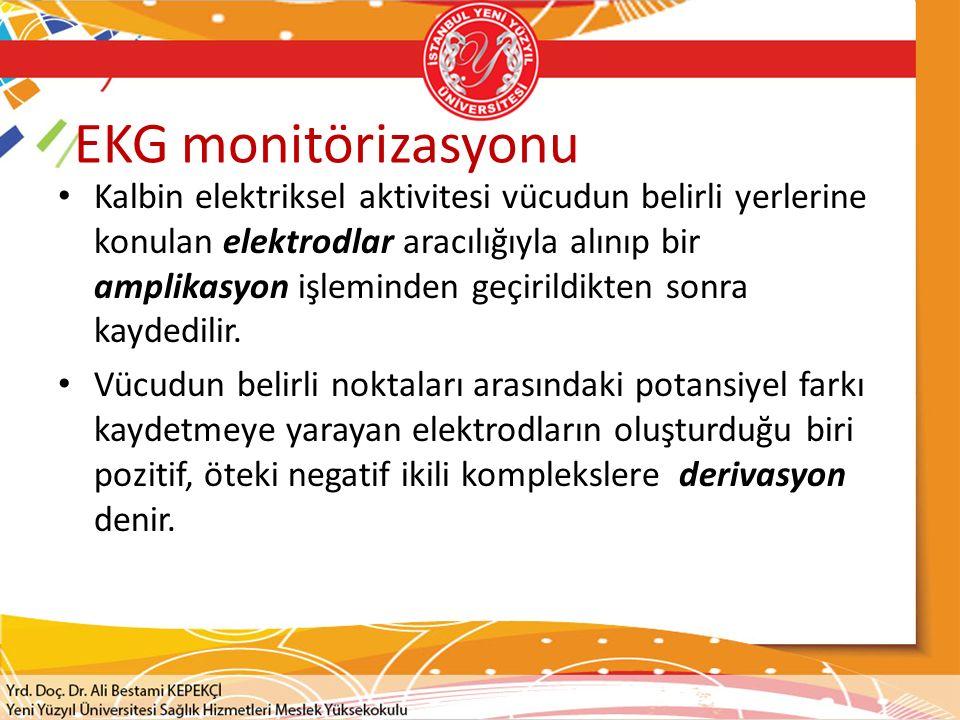 EKG monitörizasyonu
