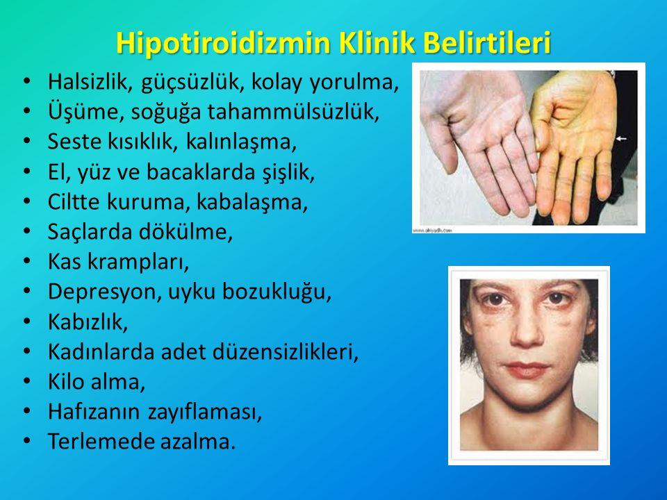 Hipotiroidizmin Klinik Belirtileri