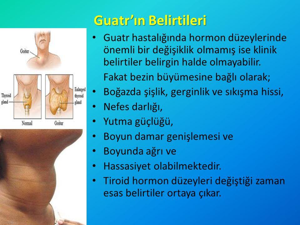 Guatr'ın Belirtileri Guatr hastalığında hormon düzeylerinde önemli bir değişiklik olmamış ise klinik belirtiler belirgin halde olmayabilir.