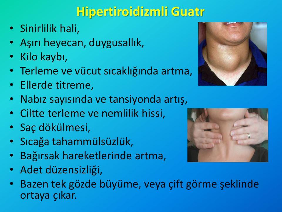 Hipertiroidizmli Guatr