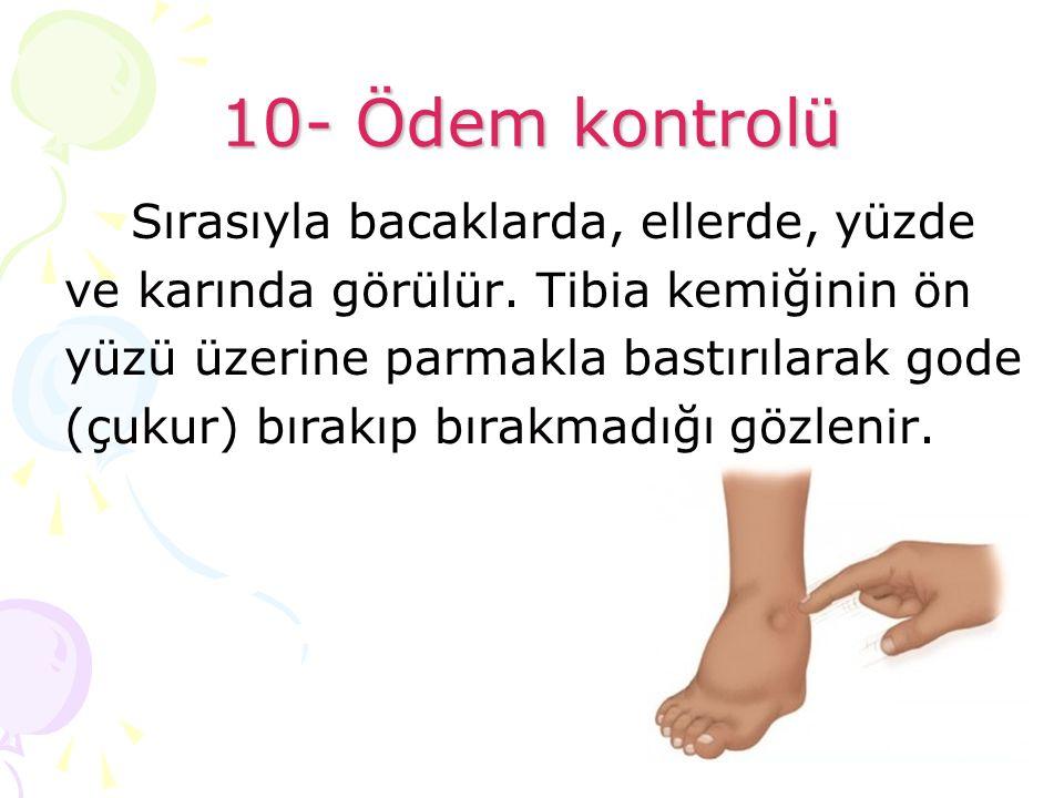 10- Ödem kontrolü Sırasıyla bacaklarda, ellerde, yüzde