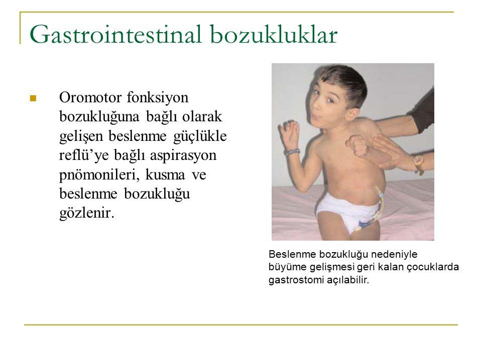 Gastrointestinal bozukluklar