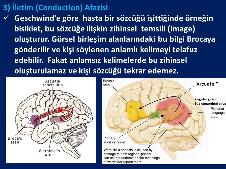3) İletim (Conduction) Afazisi