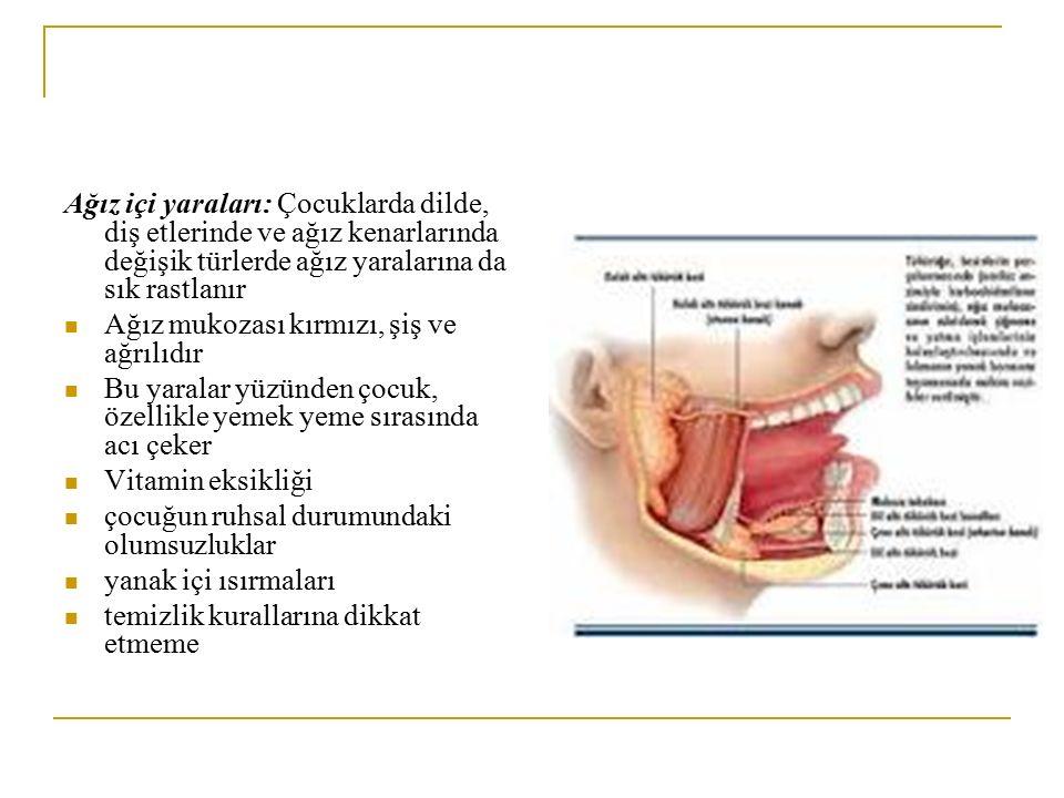 Ağız içi yaraları: Çocuklarda dilde, diş etlerinde ve ağız kenarlarında değişik türlerde ağız yaralarına da sık rastlanır