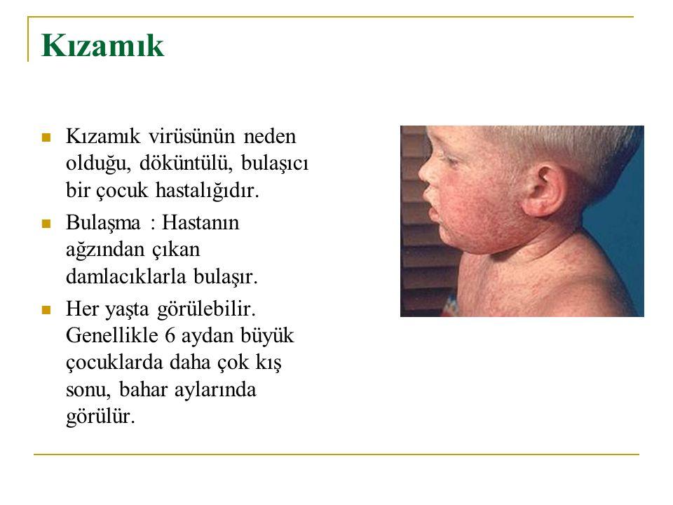 Kızamık Kızamık virüsünün neden olduğu, döküntülü, bulaşıcı bir çocuk hastalığıdır. Bulaşma : Hastanın ağzından çıkan damlacıklarla bulaşır.