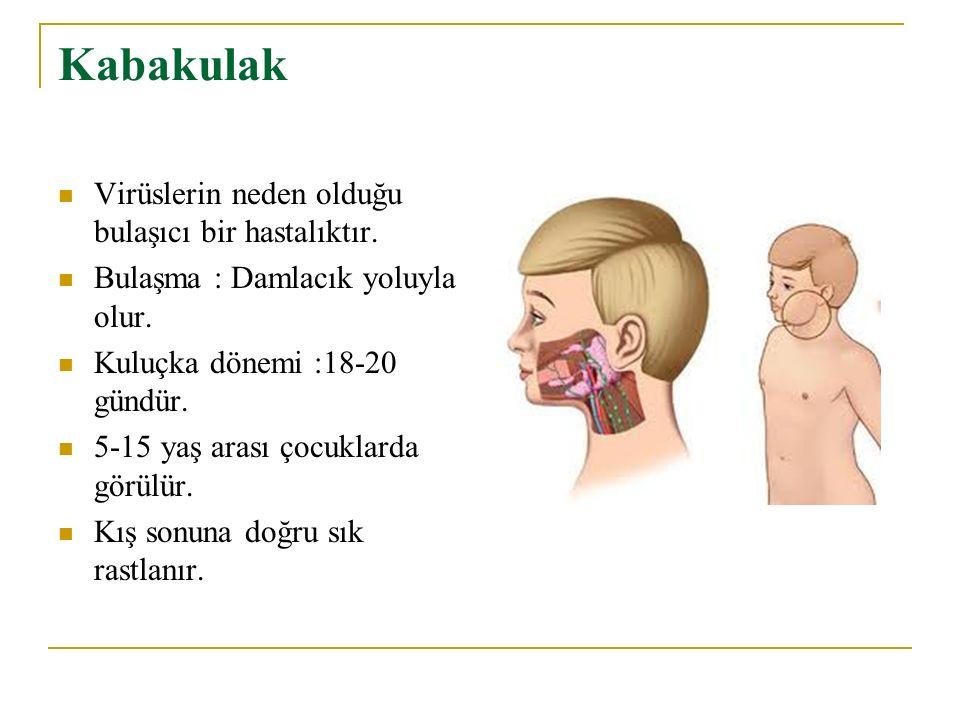 Kabakulak Virüslerin neden olduğu bulaşıcı bir hastalıktır.