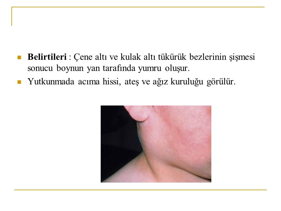 Belirtileri : Çene altı ve kulak altı tükürük bezlerinin şişmesi sonucu boynun yan tarafında yumru oluşur.