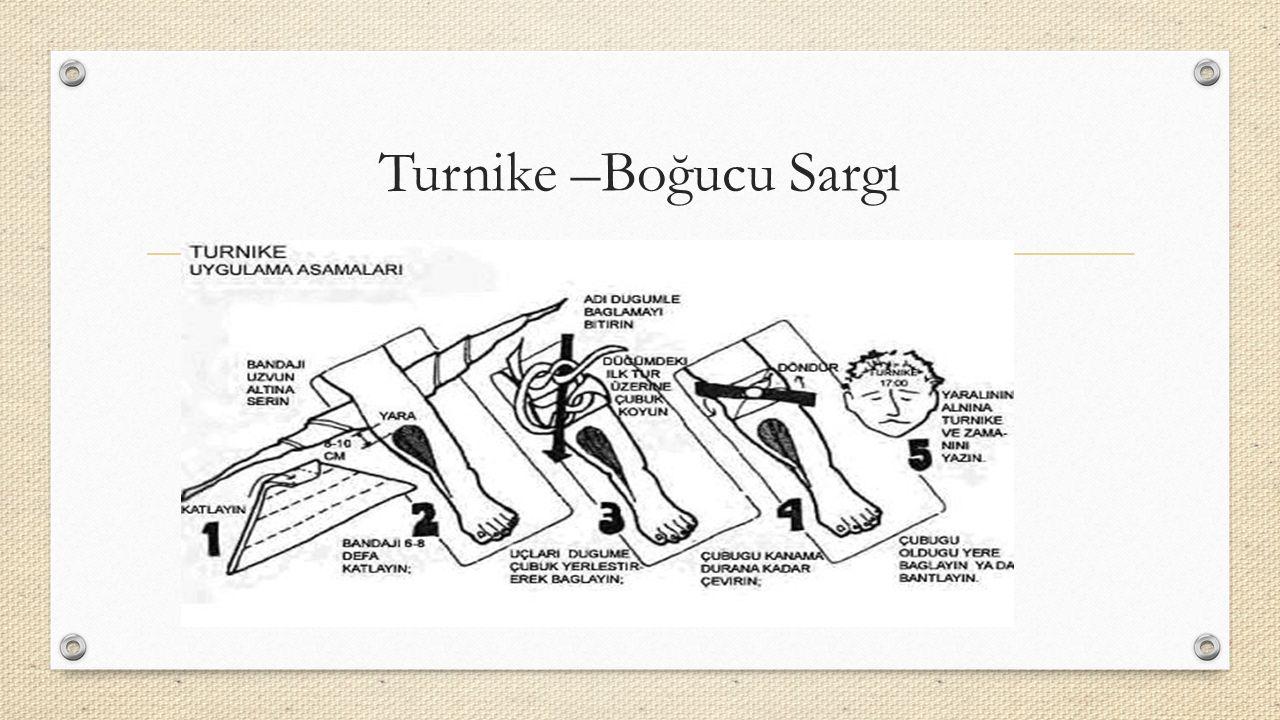 Turnike –Boğucu Sargı