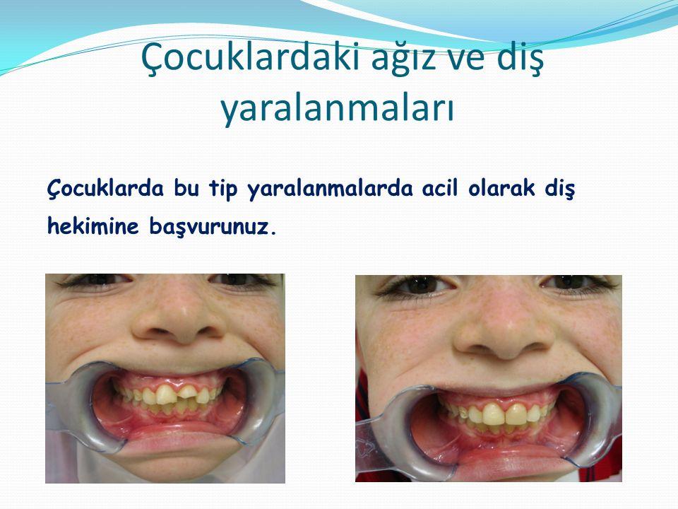 Çocuklardaki ağız ve diş yaralanmaları
